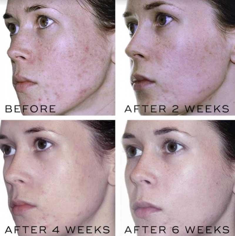 acne-behandeling-voor-en-na