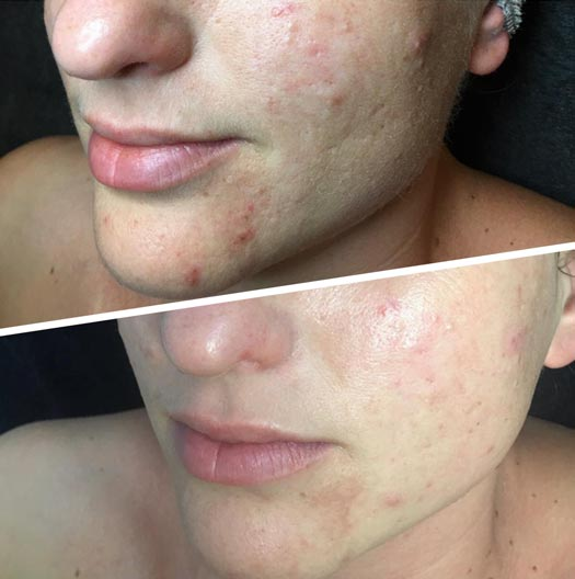 acne-voor-en-na