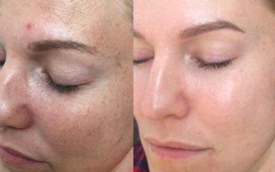 Hyperpigmentatie wat is dat en wat kun je er tegen doen?