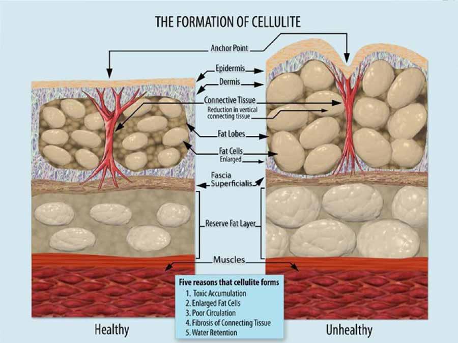 ontstaan-van-cellulite